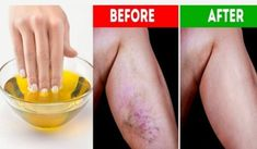 Get Rid of Varicose Veins Forever With The Use of One Simple Ingredient! Get Rid of Varicose Veins Forever With The Use of One Simple Ingredient! Varicose Vein Removal, Varicose Vein Remedy, Varicose Veins, Home Remedies, Natural Remedies, Natural Treatments, How To Get Rid, How To Remove, Clogged Arteries