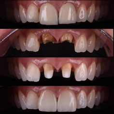 Replacement of misfit metal ceramic crowns with IPS e.max crowns. Fiber posts were placed after removal of the metal posts.  Thanks to Cdt. @sibelkucukel for lab work. Metal destekli seramik kuron protezleri IPS e.max restorasyonlar ile değiştirildi. Tedavi sırasında mevcut metal postlar sökülerek fiber post yerleştirildi.  Laboratuvar işlemleri için Cdt. @sibelkucukel teşekkürler.  #emax #crown #fiberpost #smiledesign #estheticdentistry #dentalphotography #cosmeticdentistry #dentist…