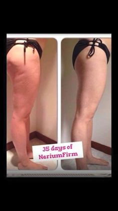 Holy moly! Smooth out your Cellulite using Nerium! 35 Day to see results like this? I'm in! Let me know if you want to try a sample! SierraPlayer.Nerium.com or Email me at SierraPlayer89@gmail.com