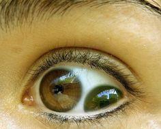 Top bizarre people eyes