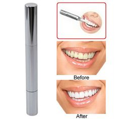 5PCS Care Oral Hygiene Teeth Whitening Pen Delicate Gel Dazzling Tooth Whitener Instant Teeth Whiten Clean Remove Stains #Affiliate