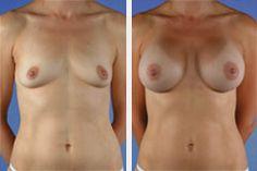 #borstvergroting #voor_en_na bij de #wellnesskliniek met Monobloc Silicone SoftOne implantaten 2.595 euro