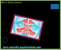 What Is Chronic Sinusitis 105810 - Cure Sinusitis