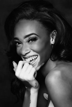 Model Winnie Harlow Talking Beyond Colour: 'Yes, I'm A Strong, Black Woman, But I'm Also A Strong Woman'