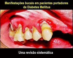 Manifestações bucais em pacientes portadores de Diabetes Mellitus: uma revisão sistemática | OVI Dental