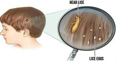 Lice treatment experts in New York. We offer effective, discreet, in-home lice removal service. We get rid of lice and nits 7 days a week. How To Get Rid, How To Remove, Funguje To, Lice Remedies, Lice Eggs, Le Psoriasis, Lice Removal, Natural Health Remedies, Natural Cures