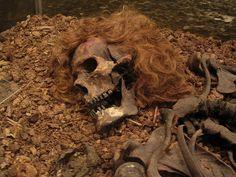 Hombre de Bocksten. Data del siglo XIV d. C. Hallado en  Varberg, , Halland, Suecia. Se encontró en un buen estado de conservación, debido a la protección natural que le otorgó el hecho de haber quedado enterrado dentro de una turbera y las partes que se conservan son el esqueleto, cabello, la piel, estómago, cerebro, pulmones e hígado. Se encontraron aparte de una de las túnicas medievales de lana mejor conservadas jamás halladas, un cinturón, dos cuchillos, unos zapatos  y una bolsa de…