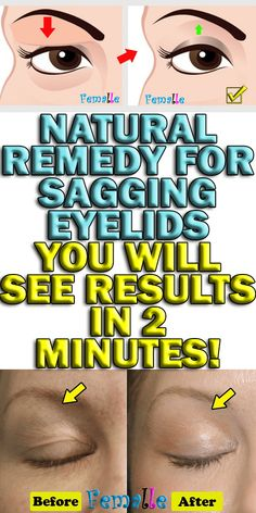 Natural Remedy for Sagging Eyelids You Will See Results in 2 Minutes! is part of Beauty remedies - Everyone would love to have a beautiful face, no doubt Nevertheless, when time passes, our skin starts to Natural Home Remedies, Natural Healing, Natural Life, Herbal Remedies, Health Remedies, Natural Skin, Holistic Healing, Cold Remedies, Natural Foods