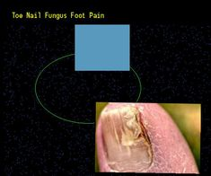 Toe nail fungus foot pain - Nail Fungus Remedy. You have nothing to lose! Visit Site Now