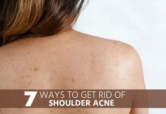 How to get rid of shoulder acne? Does it really possible to remove shoulder acne? Have you ever sacrifice your favorite dress or because you are having shoulder acne? Don't worry any more shoulder acne. I know it's very hard to just say no to your favorite bikini or top especially in summers. Because acne …