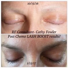 Really amazing lash boost results!! Are you ready to have longer, darker, thicker looking lashes that are 100% yours?? #bestskincare