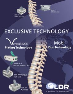 Surgical Spine Medical Device Company LDR Holding Corp