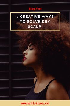 7 Creative Ways to Solve Dry Scalp - Suffering from dry scalp? Here are 7 awesome ways to combat dry scalp. Natural Hair Types, Natural Hair Journey, Natural Hair Care, Healthy Relaxed Hair, Healthy Hair, Hair Growth Tips, Hair Tips, Hair Care Recipes, Type 4 Hair