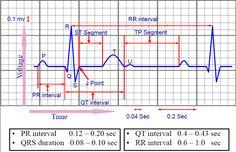 easiest way to estimate heart rate on ecg strip   ELECTROCARDIOGRAM (ECG)   howMed