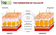 Is stubborn cellulite stopping you from wearing your favorite bikini? Learn how to get rid of cellulite while losing weight. Excess fat is the main cause of cellulite and this in-depth guide will help you Causes Of Cellulite, Cellulite Remedies, Reduce Cellulite, Cellulite Exercises, Anti Cellulite, Orange Peel Skin, Peau D'orange, Massage, Top 10 Home Remedies
