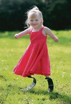 5-Year-Old Amputee Fitted with High Performance Carbon Fiber Legs.