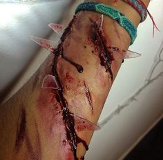 Punctured bloody arm with glass.