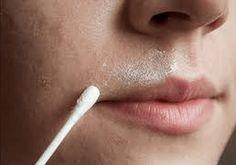 Det är alltid bäst att använda sig av naturliga alternativ för att ta bort oönskat hår, särskilt från områden som ansiktet och överläppen.