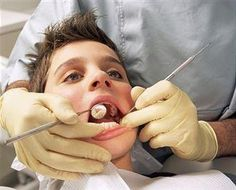 In some cases of wisdom tooth removal, the nerve may be injured and it can cause permanent damage in impacted wisdom teeth. We use the best treatment for damaged wisdom teeth. Tooth Extraction Aftercare, Tooth Extraction Healing, Wisdom Teeth Removal Cost, Wisdom Teeth Meme, Wisdom Tooth Infection, Impacted Wisdom Teeth, Dental Health, Oral Health, Dental Care
