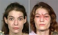 pictures of people using drugs before and after - Google Search