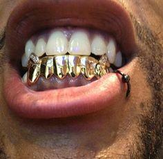 Gap Grillz, Gold Slugs, Diamond Grillz, Grills Teeth, Gold Grill, Icy Girl, Neck Accessories, Gold Teeth, Lip Piercing