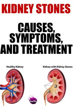 Symptoms Of Kidney Stones | kidney stones symptoms | signs of kidney stones | kidney stones signs Signs Of Kidney Stones, Kidney Stones Symptoms, Symptoms Of Thyroid Problems, Stress Symptoms, Signs And Symptoms, Blood Pressure Symptoms, Cholesterol Symptoms, Preventing Kidney Stones, Signs Of Gluten Intolerance