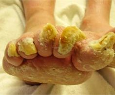 This Man Cured His Nail Fungus in 10 Minutes, Watch How