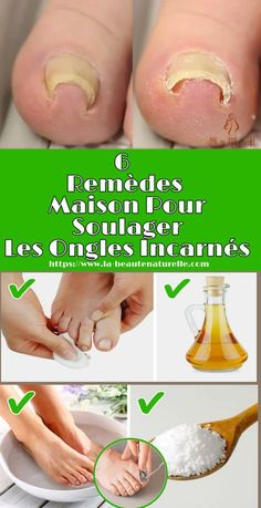 6 Remèdes maison pour soulager les ongles incarnés Ingrown nails occur when part of the nail of a to Beauty Care, Beauty Hacks, Ingrown Toe Nail, Nail Plate, Natural Pain Relief, Feet Care, Diy Crafts To Sell, Toe Nails, How To Look Pretty