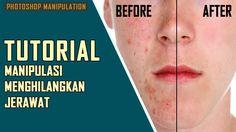 11 Ide Hepeng Design Youtube Photoshop Manipulasi Foto Jerawat