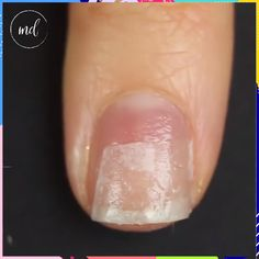 Jul 2019 - How to fix broken nails unusually ways 🤔 By: Kelli Marissa French Nails, Shellac French Manicure, French Manicure With A Twist, Fix Broken Nail, Repair Broken Nail, Cracked Nails, Split Nails, Nagel Hacks, Fungi