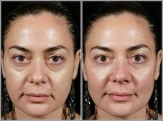 The filler injection for eye in Sydney is often a treatment method that ought to be done very carefully and it ought to be completed within or by the professional or skilled physician. This treatment method doesn't need any anesthesia. The final results of the filler injections remain for around nine to twelve months.