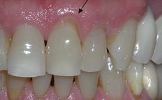 Receding gums can be quite alarming. Not only are they painful, they can also lead to pockets, or gaps, between your teeth and gum line,… Gum Disease Treatment, Oral Health, Dental Health, Health Tips, Dental Care, Health Care, Natural Health Remedies, Home Remedies, Natural Remedies