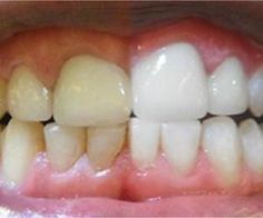 Unbelievable. Simple Trick Erase Teeth Stain Over Night