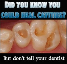 Some advice on How to Heal Cavities Naturally, not really too detailed.