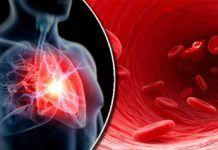 80% ataków serca można by uniknąć, gdyby wszyscy stosowali 5 łatwych zasad Neon Signs, Sport, Diet, Deporte, Sports