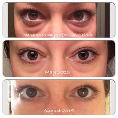 "WOWZERS!! Check out these results from our eye crack...I mean eye cream! Ashley Anne just shared her pics with us! Here's what she said: ""Okay so this is extremely hard for me to post because I was so self conscious about my eye bags and have had them since I was a child. As much as I bother you all with posts about how great R&F is, this isn't about getting big sales and fake stuff. It literally has changed my life."" https://amangnall.myrandf.com/Shop/Product/AAEY015…"