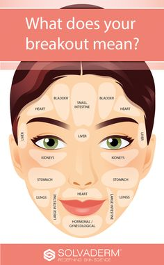 Face mapping is a technique, based on the traditional method to treat the specific locations of the acne of the face according to your health i… Skin Tips, Skin Care Tips, Doterra Acne, Face Mapping, Acne Causes, How To Get Rid Of Acne, Tips Belleza, Beauty Skin, Told You So