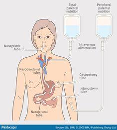 www.smileeachandeveryday.com Guide to tube feeding: TPN, NG, NJ, PEG, PEJ