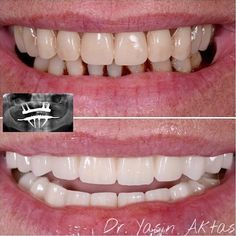@doc_aktas #odontologia #odontolovers #odonto #dentista #dentist #dentistry #dentistrylife #dentistryworld #dentistrystudent by draflabusta Our General Dentistry Page: http://www.myimagedental.com/services/general-dentistry/ Google My Business: https://plus.google.com/ImageDentalStockton/about Our Yelp Page: bit.ly/1KZUPer Our Facebook Page: https://www.facebook.com/MyImageDental Image Dental 3453 Brookside Road Suite A Stockton CA 95219 (209) 955-1500 Mon - Fri: 8am - 5pm…