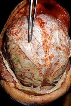 Just beneath the skull is a tough, leathery layer called the dura mater