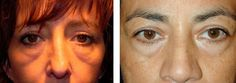 Facial Training Workouts For A Stunning Biological Facelifts For Gents And Ladies