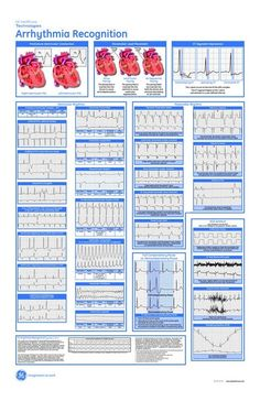 Control Blood Pressure in 7 Days - Arrhythmia Recognition On this page, ill explain the three blood pressure exercises in details. And how exactly you can use them to heal your blood pressure- starting today. Nursing Tips, Nursing Programs, Nursing Notes, Ekg Interpretation, Nursing Information, Critical Care Nursing, Cardiac Nursing, Pa School, New Nurse