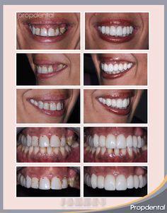 #coronasdentales de porcelana pura. Las #prótesisdentales libres de metal realizadas por el dentista especialista en #estéticadental de clínicas Propdental en Barcelona
