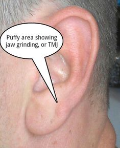 Teeth grinding ear