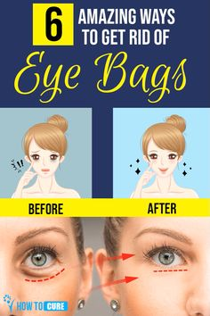 How To Get Rid Of Bags Under Eyes Fast At Home – HowToCure With aging, many skin issues crop up and bags under eyes are a common cosmetic concern. Home remedies may help reduce or eliminate puffy eyes. Puffy Bags Under Eyes, Under Eye Bags, Puffy Eyes, How To Get Rid Of Bags Under Eyes, Reduce Eye Bags, Anti Aging, Dark Circles Under Eyes, Cool Eyes, Home Remedies