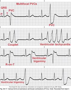Heart Rhythm Strips | Rate: Within normal range