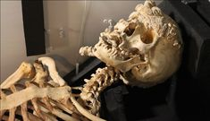 Merrick's skeleton still displays the visibly horrific results of his disease, which caused gigantic fleshy growths that covered his whole body. Joseph Merrick, Unusual Facts, Fantasy Story, Vintage Circus, Dracula, Anthropology, Snail, Elephant, Bones