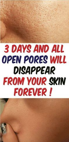3 Days and All Open Pores Will Disappear From Your Skin Forever Pores In Your Skin Closing Pores In Your Face Clean Pores bad Pores Shrink Pores Make Pores Smaller. Beauty Care, Beauty Skin, Health And Beauty, Beauty Hacks, Diy Beauty, Beauty Ideas, Beauty Secrets, Beauty Products, Face Beauty