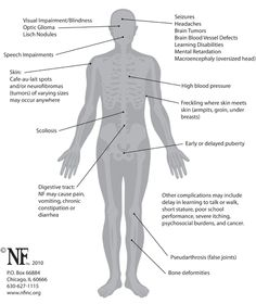 Symptoms of NF1--shows the vastness of havoc that NF can wreak on a body.
