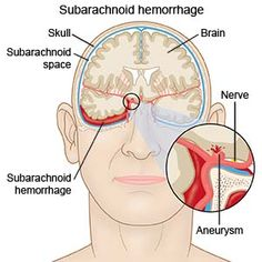 #Nimodipine is used to treat and prevent neurological problems (brain damage) caused by subarachnoid hemorrhage (bleeding in the brain caused by a ruptured blood vessel in the brain).